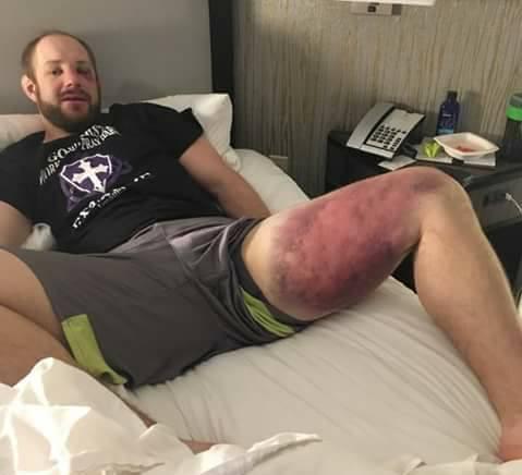 Olha só o estrago que Thiago Silva fez na perna do adversário, Jared Torgeson... (Foto: ENTImports)